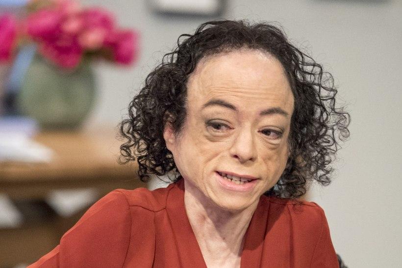 Maniakk ründas ratastoolis näitlejannat kääridega