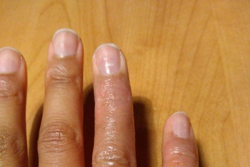 Kas sind vaevavad nahaprobleemid?