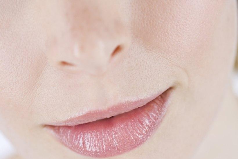 Seitse apsu, mis soodustavad külmade ilmadega huulte lõhenemist