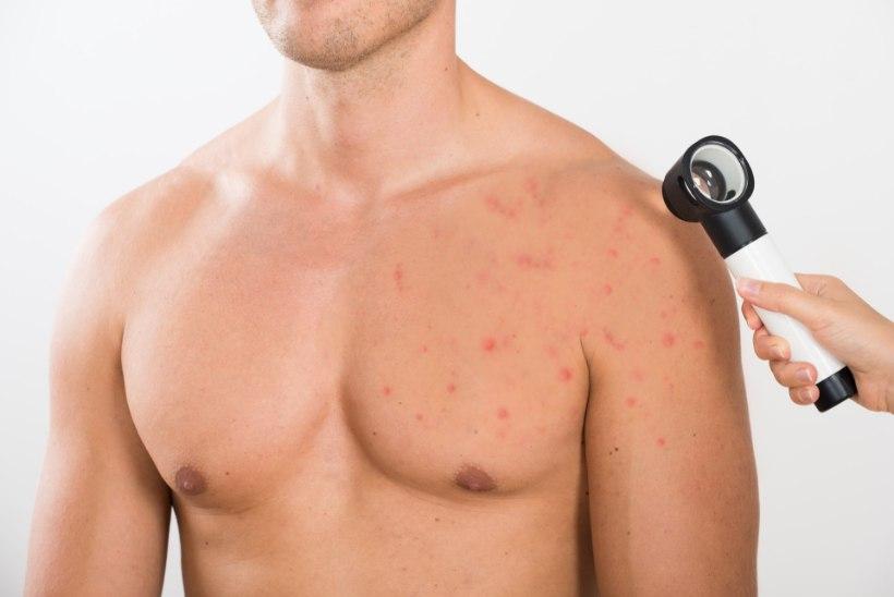 Nahavähk ohustab mehi rohkem kui naisi