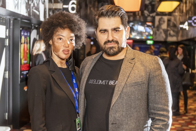 PILDID | Värvikat PÖFFi Moekino avamist väisas ka haruldast vitiligo nahahaigust põdev modell Tysha Kouassi