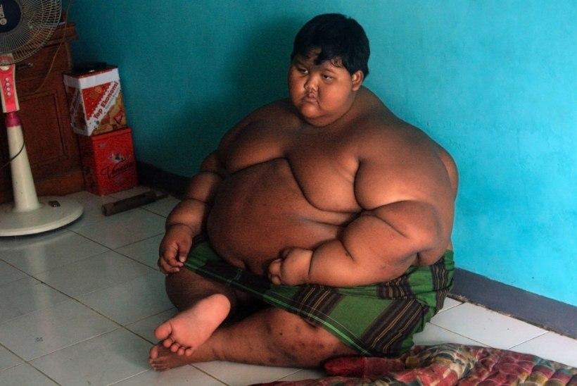Maailma paksim poiss võttis tänu lõikusele 76 kilo alla