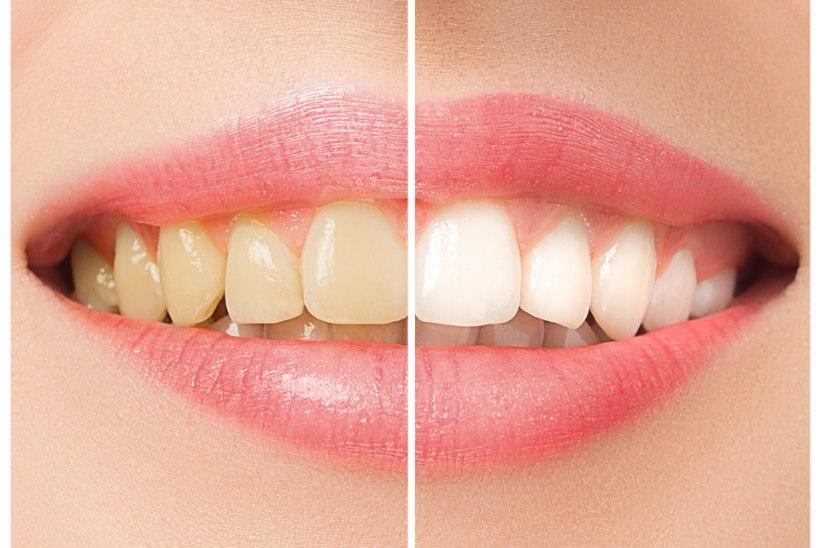 MIDA TEHA? 6 põhjust, miks su hambad kollaseks muutuvad
