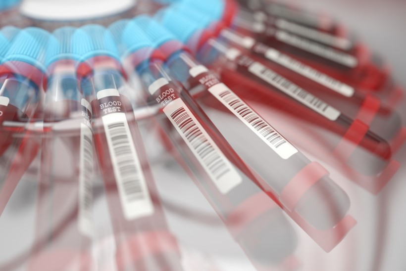 Miks mõjub madal hemoglobiini tase südamele halvasti?