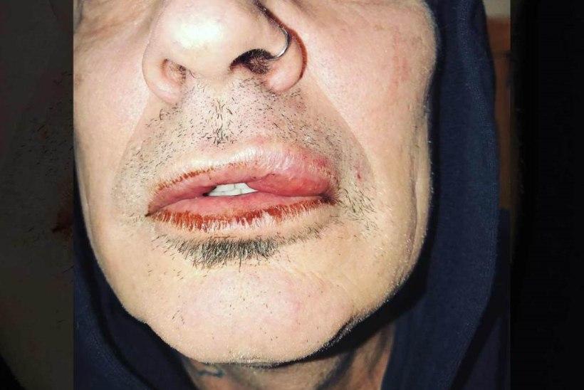 Pammy poeg (20) peksis oma rokkarist isa Tommy Leed