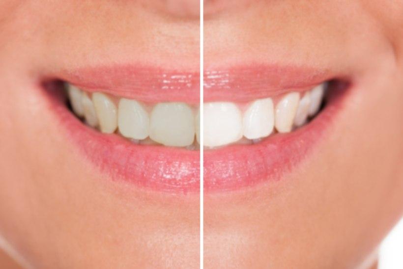 Kuus igapäevast harjumust, mis muudavad hambad kollaseks