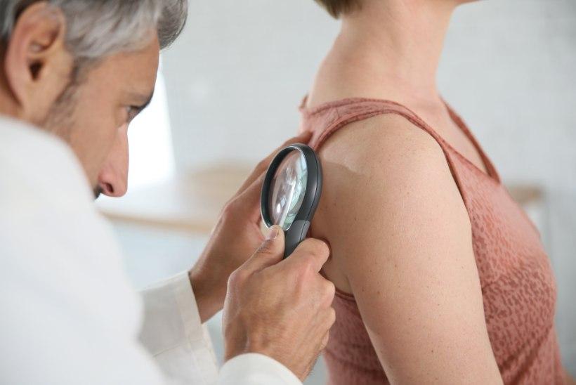 Vägagi levinud melanoomi avastatakse järjest enam õigeaegselt