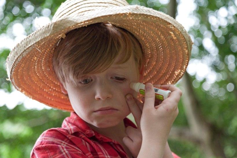 Putukahammustus kipitab! Mida teha?