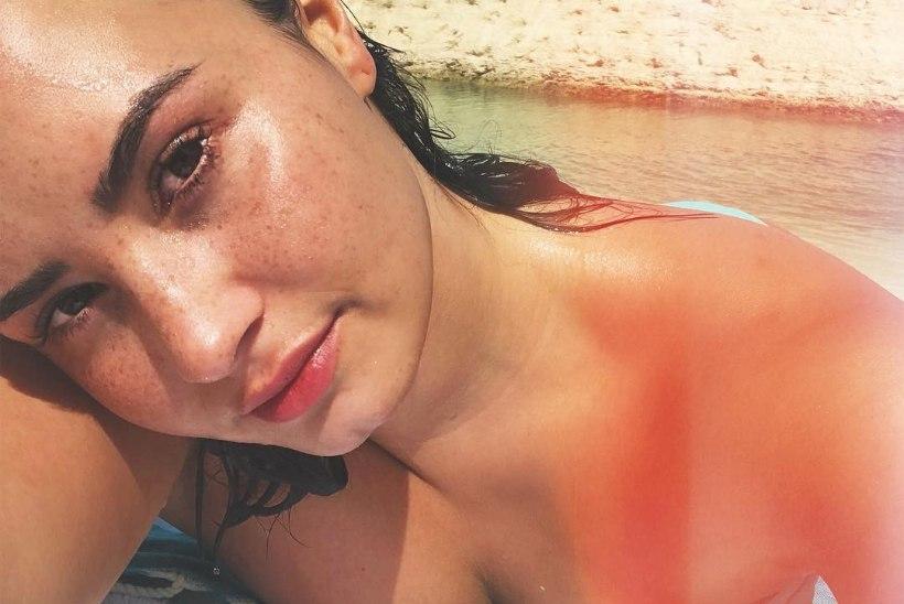 HEROIINI ÜLEDOOS: Demi Lovato leiti kodust teadvusetult ja toimetati haiglasse
