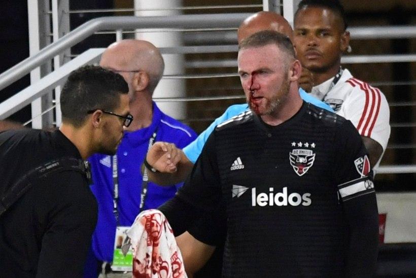 VERINE VIDEO | Wayne Rooney murdis nurgalööki kaitstes ninaluu