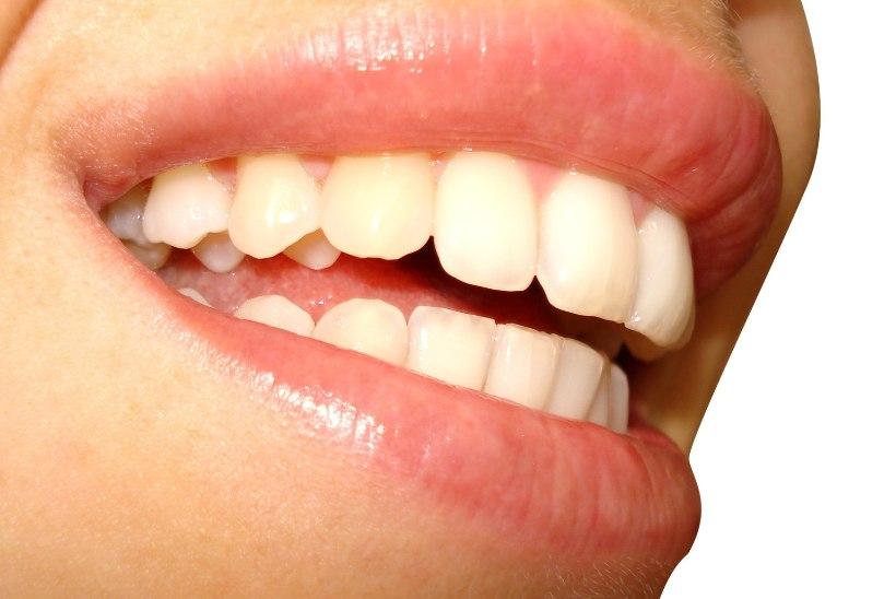 Hambaarstide liit täiskasvanute hambaravihüvitisest: mõtlematu raiskamine