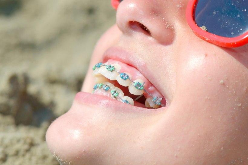 Puseriti hambad sirgesse ritta: breketite või kapedega?