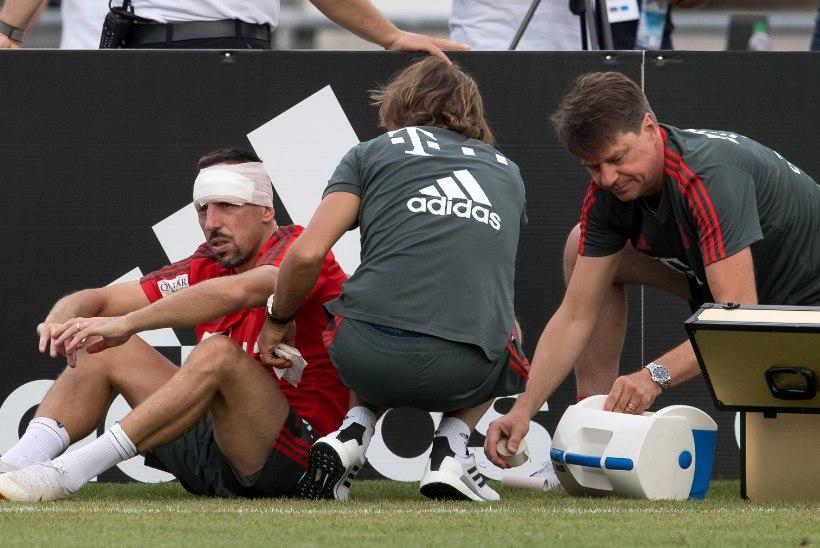 FOTOD | Ribery lõi Bayerni treeningul pea vastu väravaposti