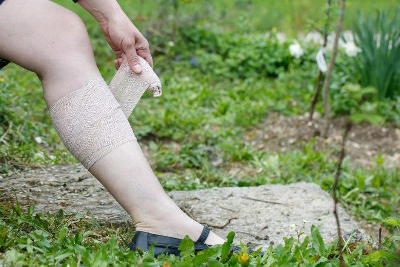 KUMMALISED KÕHUVALUD? Arst selgitab, et häirivad veenilaiendid pole vaid jalal