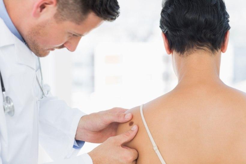 UURIMUS: melanoomi varajane avastamine aitaks säästa miljoneid eurosid