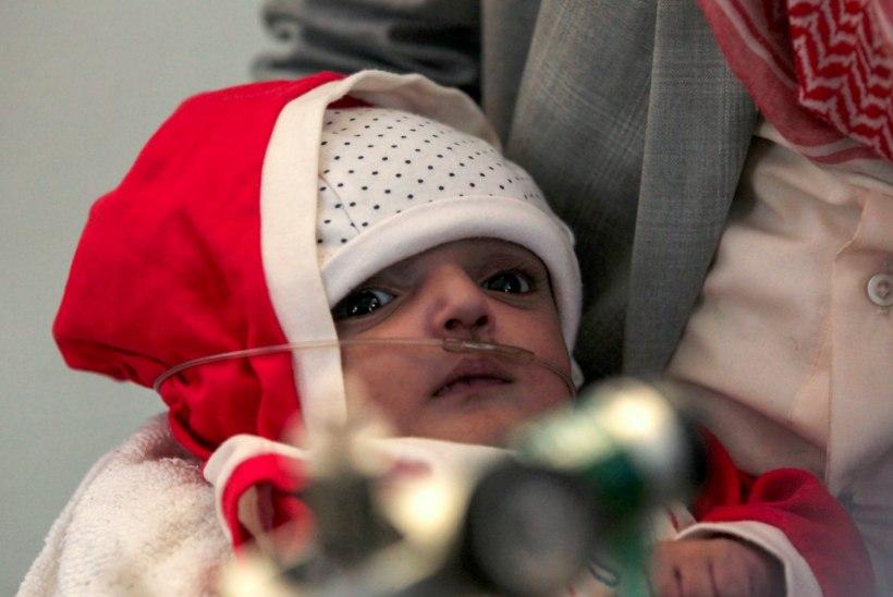 KURVAD FOTOD | Jeemenis ohustab näljahäda viit miljonit last
