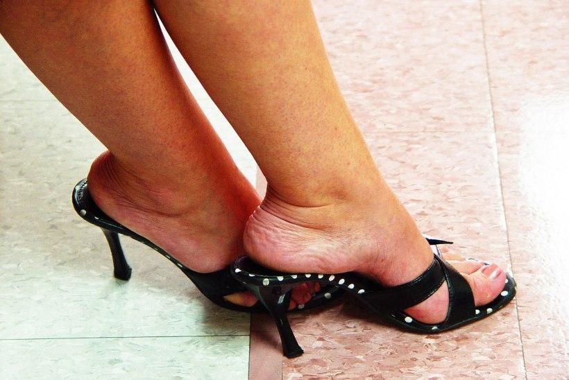 VAATA, MIDA KANNAD! 12 tavalist rõivaeset, mis rikuvad pikkamisi su tervise