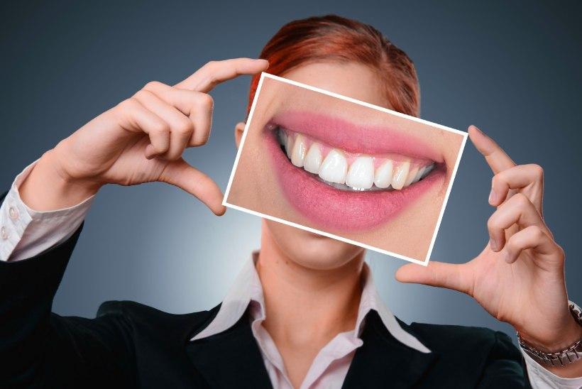 Miks hambaarst tahab iga kord su suud hambakivist puhastada?