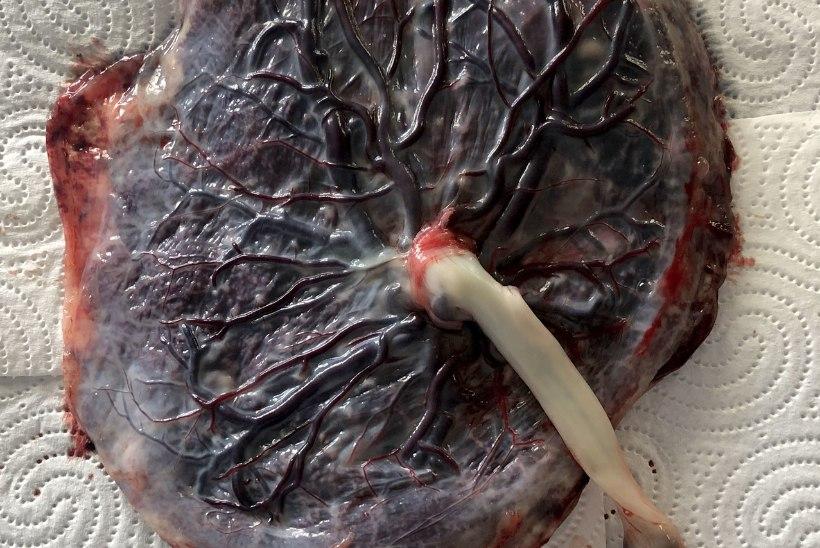 Sünnitustrendid: jäta beebi nabanööripidi platsenta külge või valmista platsentast hoopis smuutit