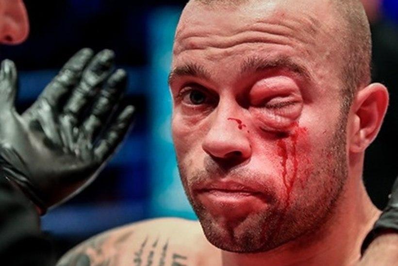 VIDEO   MMA-võitlejal paistetas jõhkra põlvehoobi järel silm kinni
