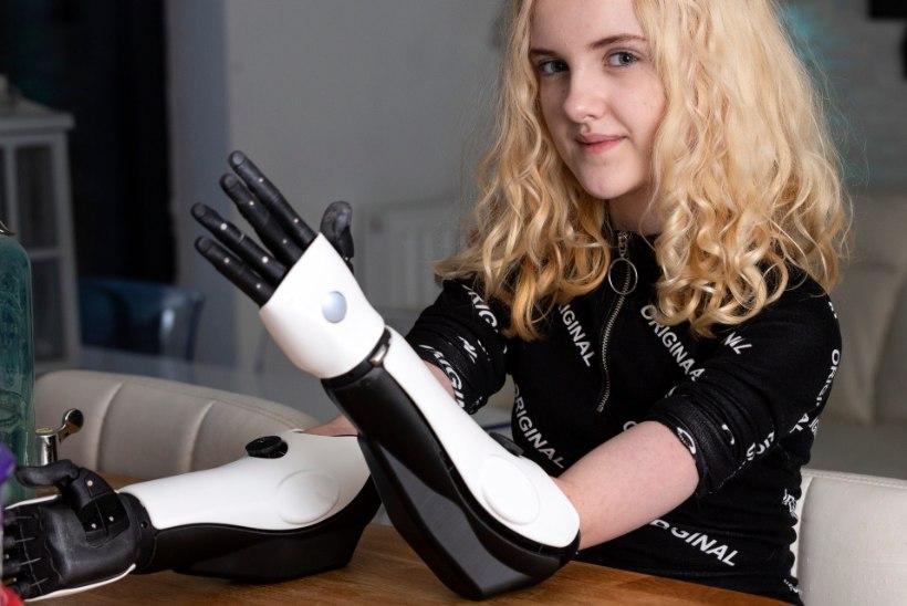 Meningiidi tõttu käed kaotanud tüdruk sai 3D-printeriga tehtud proteesid