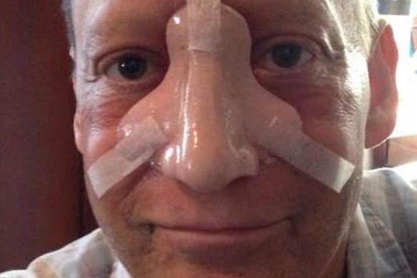Menusarja näitleja tappis haruldane ninavähk