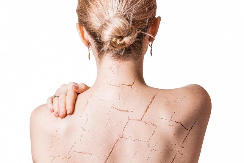 Number väiksem nahk saledamaks ei tee: 5 vajalikku nõuannet kuiva naha turgutamiseks