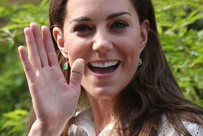 MÕISTATUS: miks on hertsoginna Catherine'i sõrmed alailma plaasterdatud?!