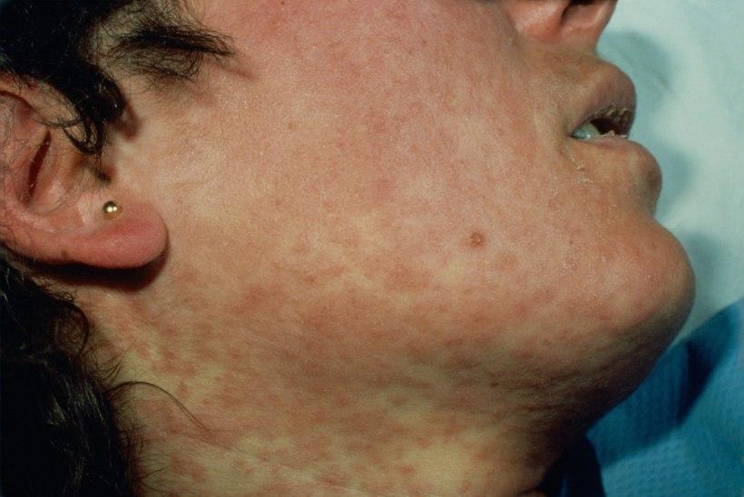 MITU NÄDALAT SIRULI MAAS: nii põevad leetreid, mumpsi ja teisi lastehaigusi täiskasvanud