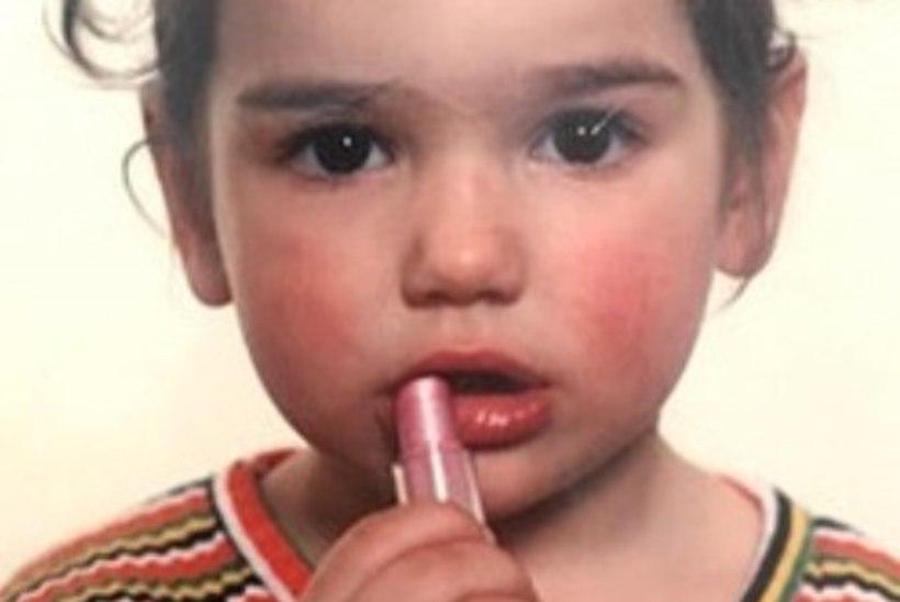 Dua Lipa on lapsepõlvefotol oma huuli suurendanud?