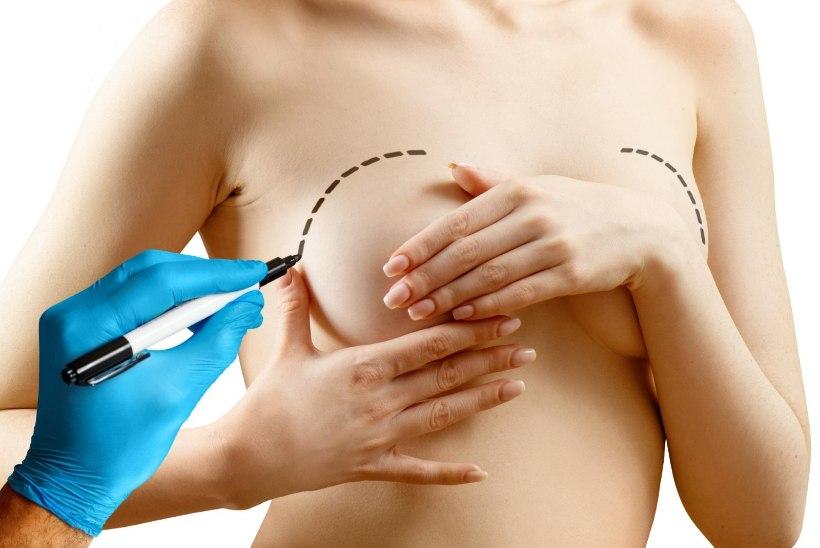 VÄHIRISK! Ravimifirma kutsub üle maailma tagasi ohtlikud rinnaimplantaadid