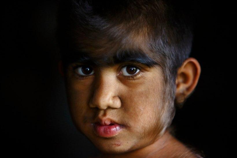 """VALED ROHUD: Hispaania lastel arenes pärast ravimitootja eksitust """"libahundi sündroom"""""""
