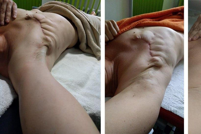 Milline on rinnavähi patsientide tänapäevane taastusravi?