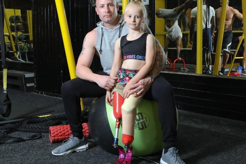 LIIGUTAV LUGU: 9aastane jalaproteesidega tüdruk teeb modellikarjääri