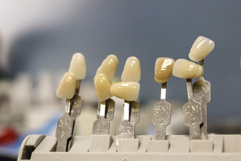 PANE NAERATUS SÄRAMA! Millega saab asendada puuduvaid hambaid?