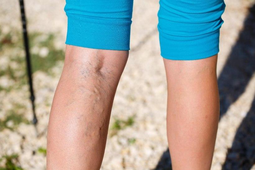 Tiiu test: turses jalgu rõõmustab nii kallis kui ka odav kreem või geel