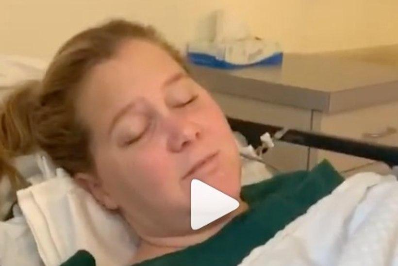 Viljakusravi saav Amy Schumer jagas lõikusjärgset videot
