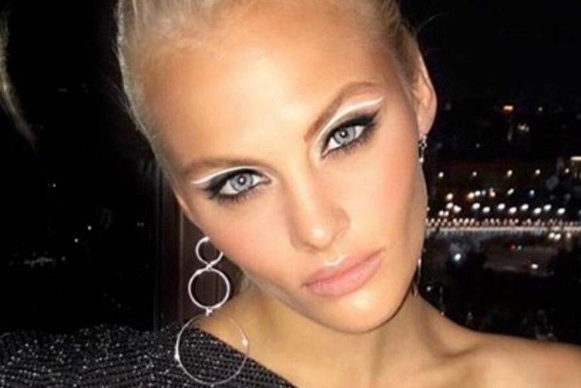 Vene supermodell kukkus segastel asjaoludel kolmanda korruse aknast välja