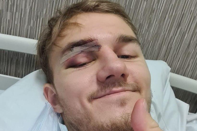 FOTO | Head paranemist! Koljuluu murdnud Tarva korvpallur taastub operatsioonist