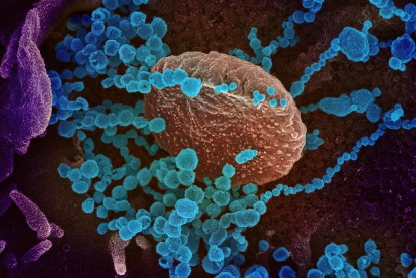 Kuidas koroonaviirus nakatunu kehas liigub ning mida ta seal korraldab?