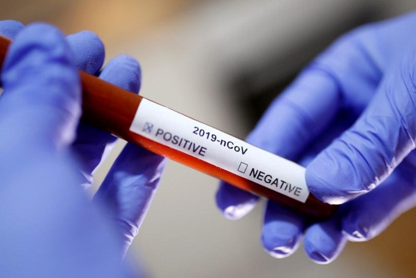 Esmaspäeval lisandus 20 koroonaviirusesse nakatunut, tegelik arv on tõenäoliselt suurem