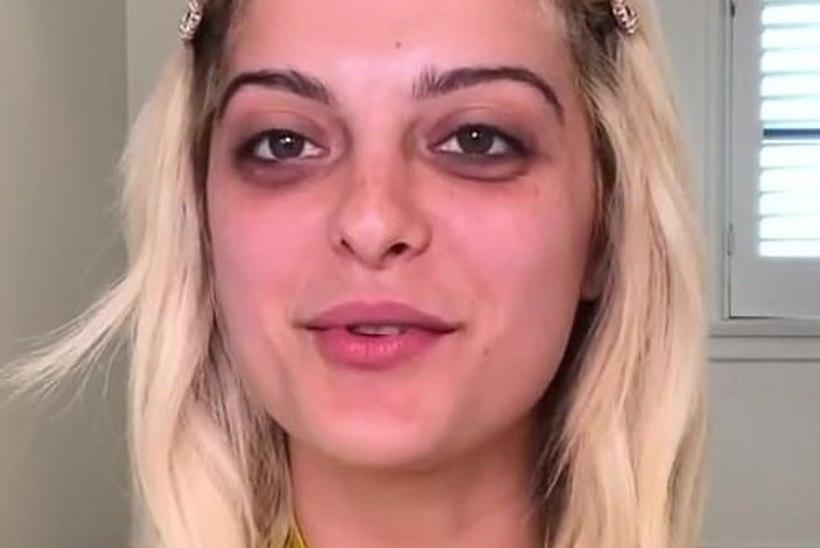 Bebe Rexha avaldas fännidele oma iluvea ning jagas nippe selle varjamiseks
