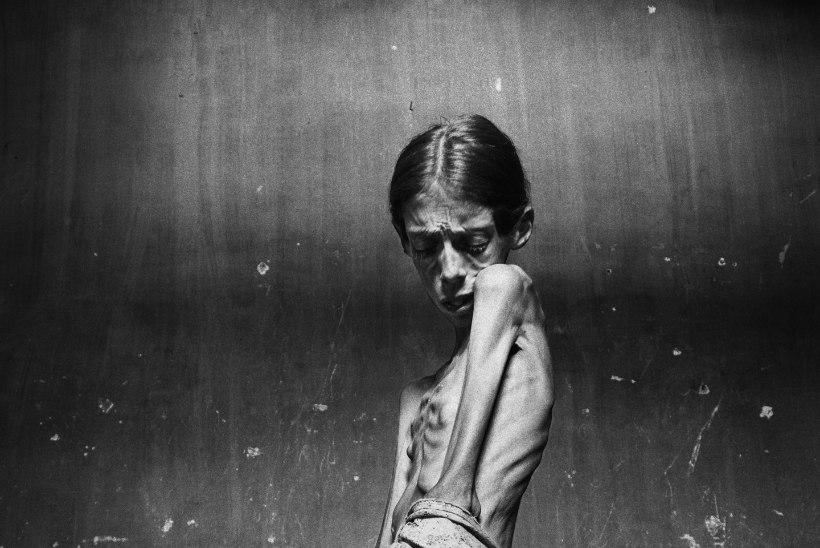 """""""Minu fotod ei ole anoreksiast. Minu fotod on inimkannatustest."""""""