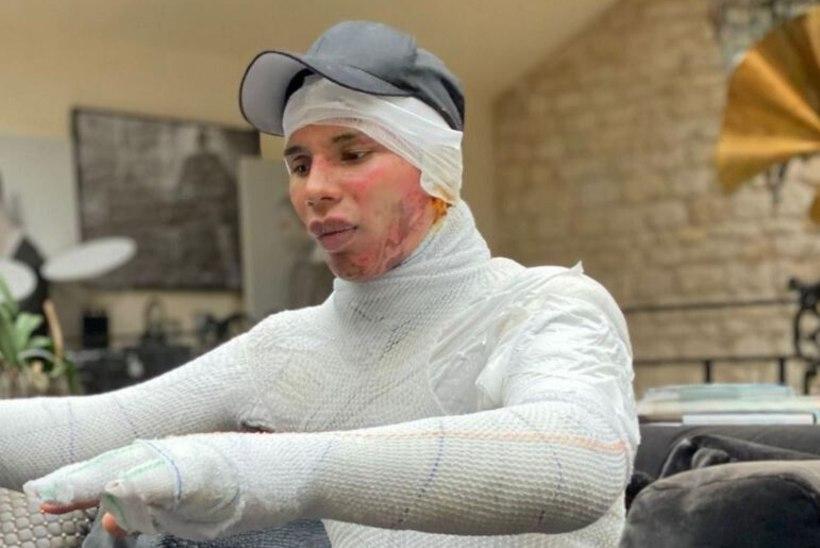 KOLETU SALADUS: kuulus moekunstnik sai plahvatuses ränki põletushaavu