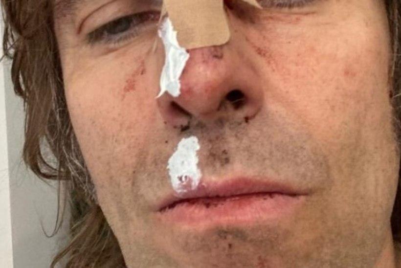 MATS JA MAAÜHENDUS! Liam Gallagher kukkus helikopterist välja