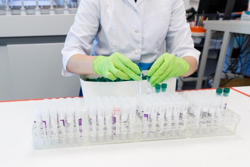 Koroonaviirusega on haiglaravil 149 inimest, ööpäevaga lisandus 465 uut nakatunut ja suri üks inimene