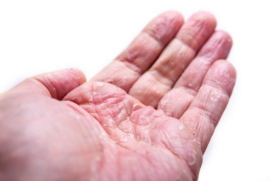 Kuidas hooldada atoopilist nahka?