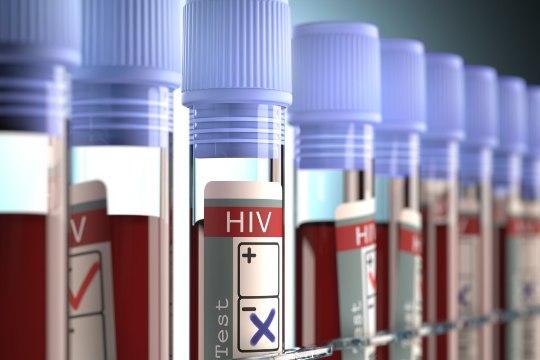 Uuring: Eesti elanikud ei tea, et HIVi nakatutakse aina enam sugulisel teel