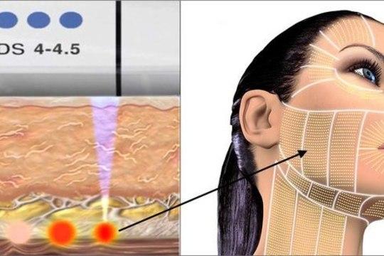 Uusim mittekirurgiline meetod – SMAS-lifting ultraheli abil!