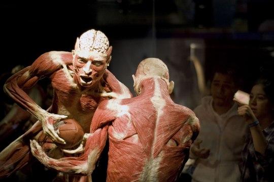 Организаторов выставки о человеке обвинили в использовании трупов заключенных